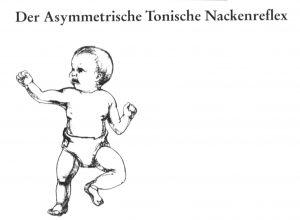 Der Asymmetrische Tonische Nackenreflex INPP Skoliose Therapie-Zentrum, Unna